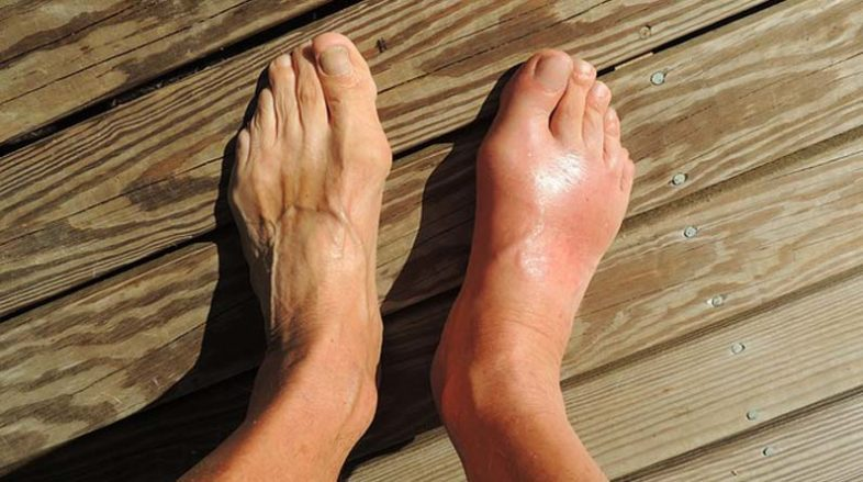 Gout-What-It-Is-and-How-to-Deal-With-It2