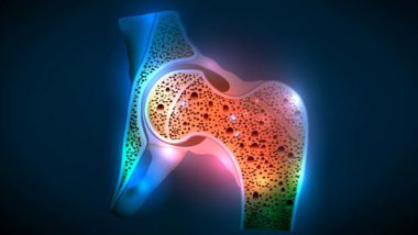 Living-With-Osteoporosis2